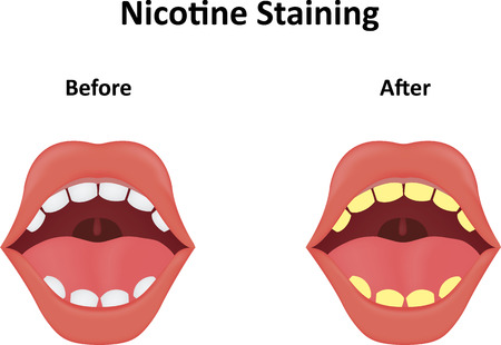 discolored: Nicotine Staining