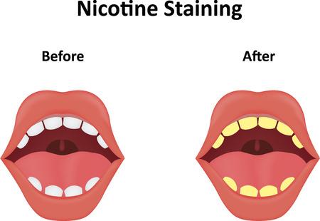 staining: Nicotine Staining