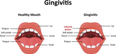 gingivitis: Gingivitis Illustration
