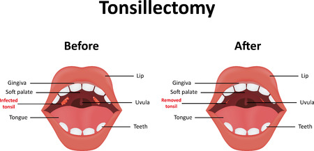 tonsillitis: Tonsillectomy