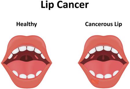Lip Cancer Illustration