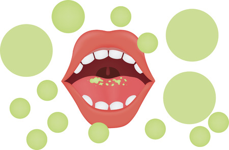Halitosis Illustration