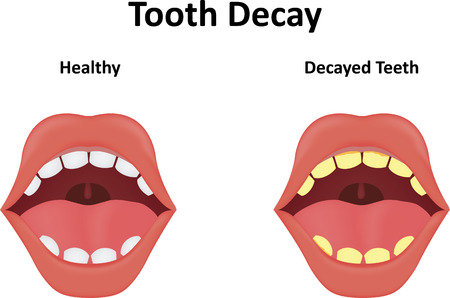 diente caries: La caries dental