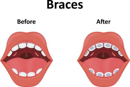 Braces Illustration