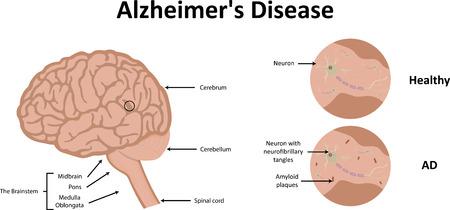 placa bacteriana: Enfermedad de Alzheimer Ilustración