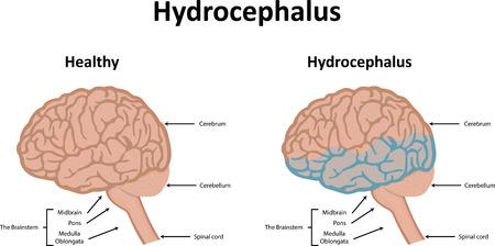 acquired: Hydrocephalus Illustration