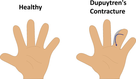 flexion: Dupuytrens Contracture