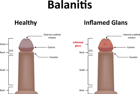 glans: Balanitis Stock Photo