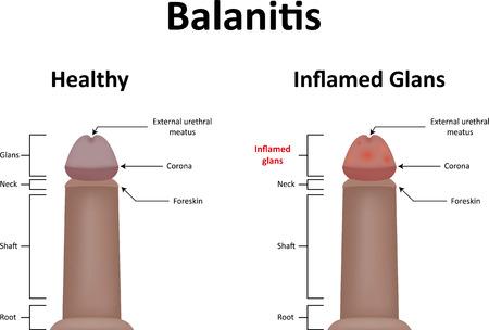 pene: La balanitis