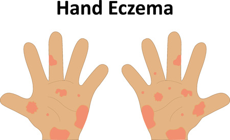 dermatologist: Eczema on the Hand