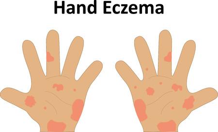 redness: Eczema on the Hand