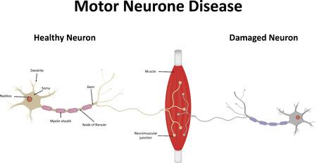 neurone: Motor Neurone Disease