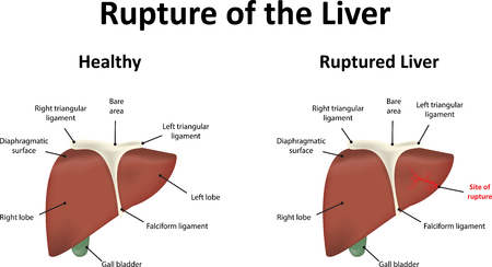 abdominal organs: Rupture of the Liver