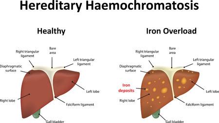 hepatic: Hereditary Haemochromatosis