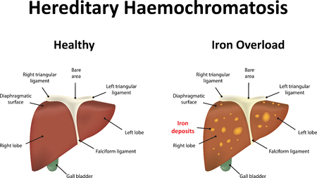 hepatic: Hereditary Haemochromatosis