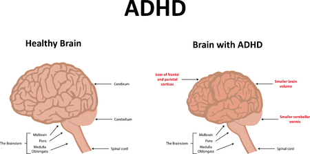 hyperactivity: ADHD Illustration