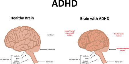 ADHS-Illustration Standard-Bild - 46167165