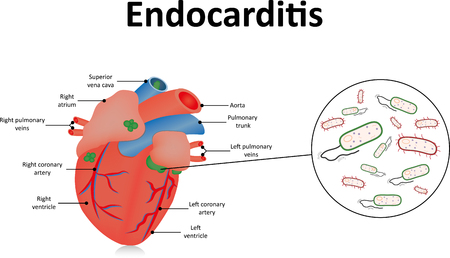 bacteria in heart: Endocarditis
