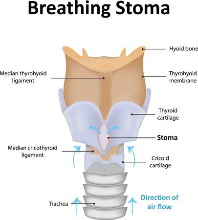 stoma: Breathing Stoma Illustration Illustration