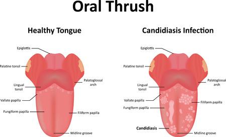 papilla: Oral Thrush Illustration Illustration