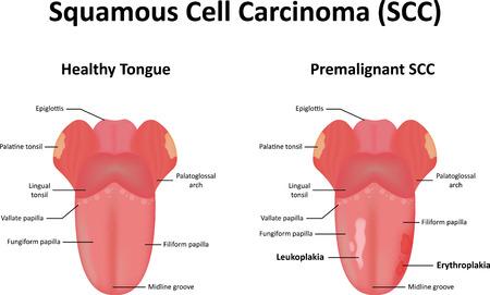 la boca: Carcinoma de células escamosas