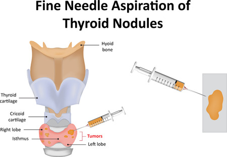 biopsy: Fine Needle Aspiration of Thyroid Nodules