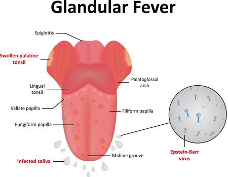 simplex: Glandular Fever Illustration