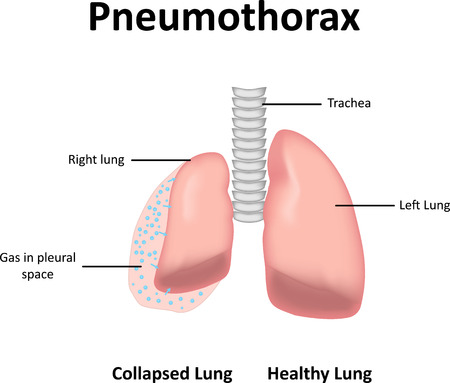 collapsed lung: Pneumothorax Illustration