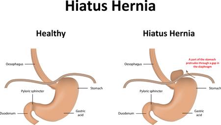 fundus: Hiatus Hernia