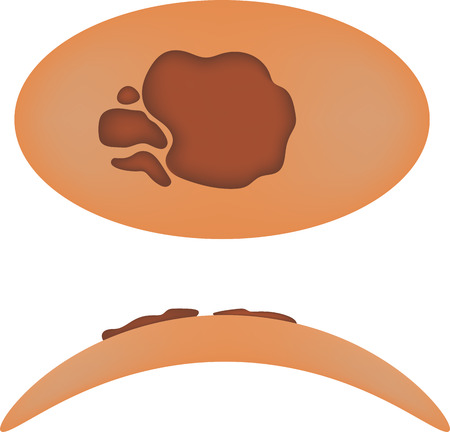 melanoma: Melanoma Illustration Stock Photo
