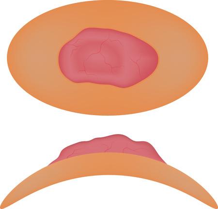 benign: Basal Cell Carcinoma