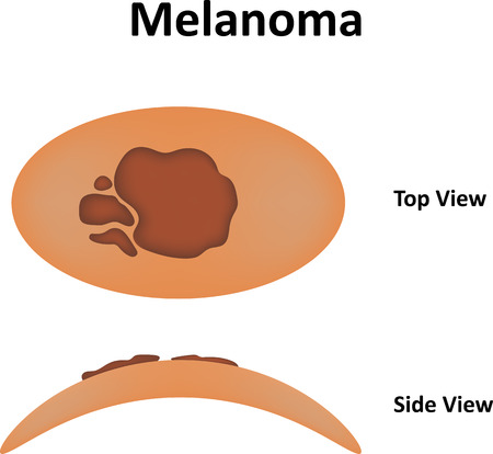 melanoma: Melanoma Labeled Diagram