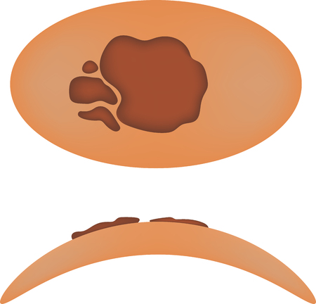 melanoma: Melanoma Illustration Illustration