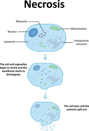 necrosis: Necrosis Labeled Diagram