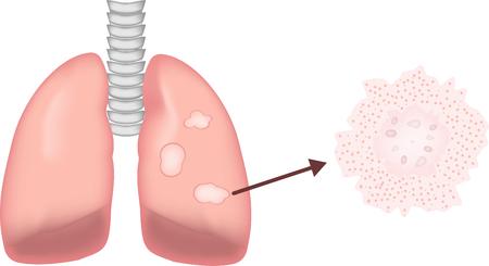 neutrophil: Granulomatous Lung Disease