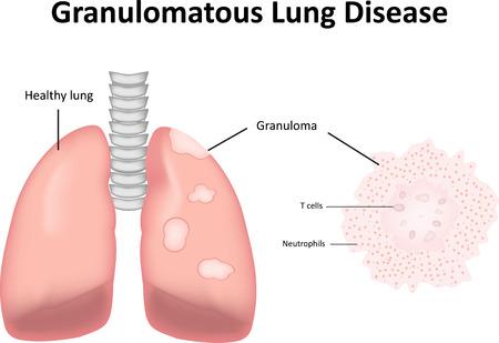 labeled: Granulomatous Lung Disease Labeled Diagram