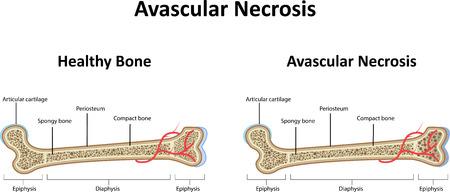 necrosis: Avascular Necrosis Illustration