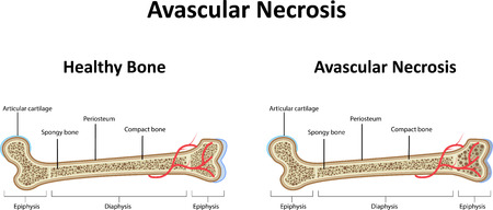 Avascular Necrosis Illustration