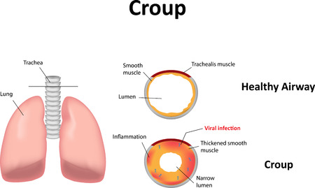 airway: Croup
