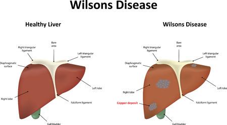 recessive: Wilsons Disease