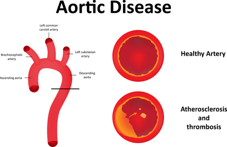 aortic: Aortic Disease JPEG