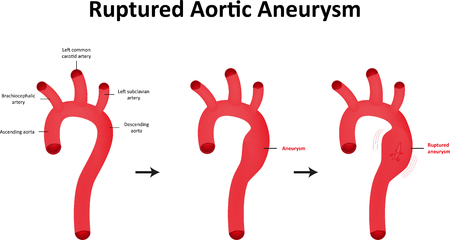 carotid: Ruptured Aortic Aneurysm