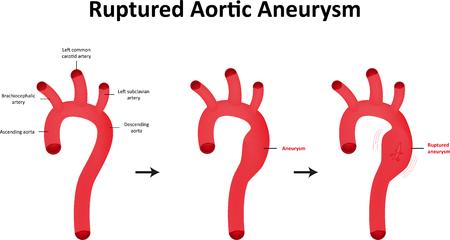 carotid: Ruptured Aortic Aneurysm