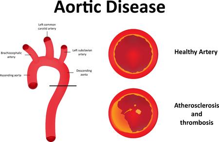 大動脈疾患 写真素材