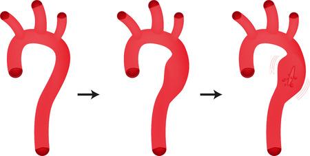 대 동맥류
