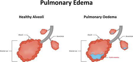 pus: Edema polmonare Vettoriali