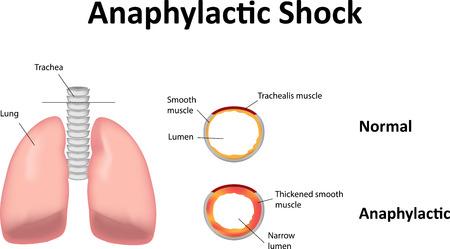 the lumen: Anaphylactic Shock