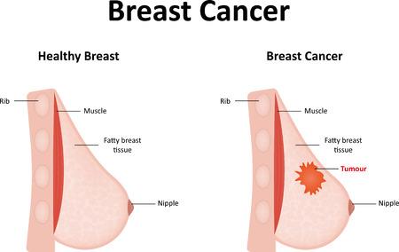 Cancro Al Seno Vettoriali