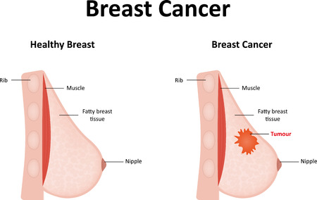 Rak piersi Ilustracje wektorowe