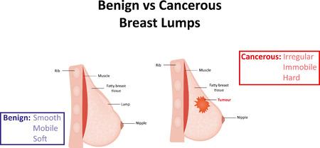 良性と悪性の乳房のしこり